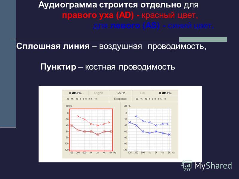 Аудиограмма строится отдельно для правого уха (AD) - красный цвет, для левого (AS) - синий цвет. Сплошная линия – воздушная проводимость, Пунктир – костная проводимость