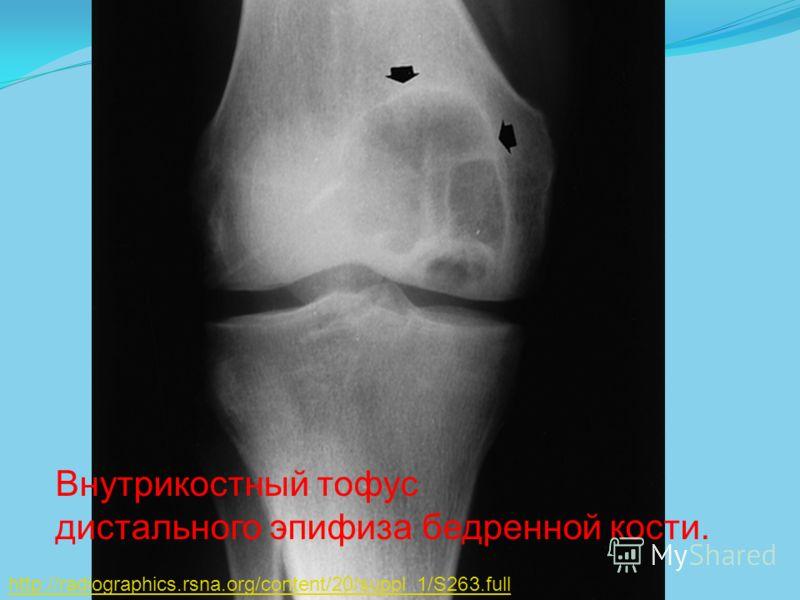 http://radiographics.rsna.org/content/20/suppl_1/S263.full Внутрикостный тофус дистального эпифиза бедренной кости.