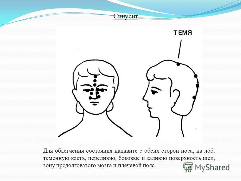 Для облегчения состояния надавите с обеих сторон носа, на лоб, теменную кость, переднюю, боковые и заднюю поверхность шеи, зону продолговатого мозга и плечевой пояс. Синусит