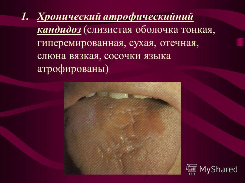 1.Хронический атрофическийний кандидоз (слизистая оболочка тонкая, гиперемированная, сухая, отечная, слюна вязкая, сосочки языка атрофированы)
