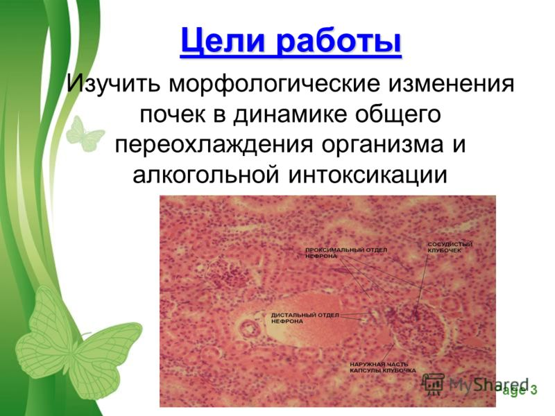 переохлаждения организма и