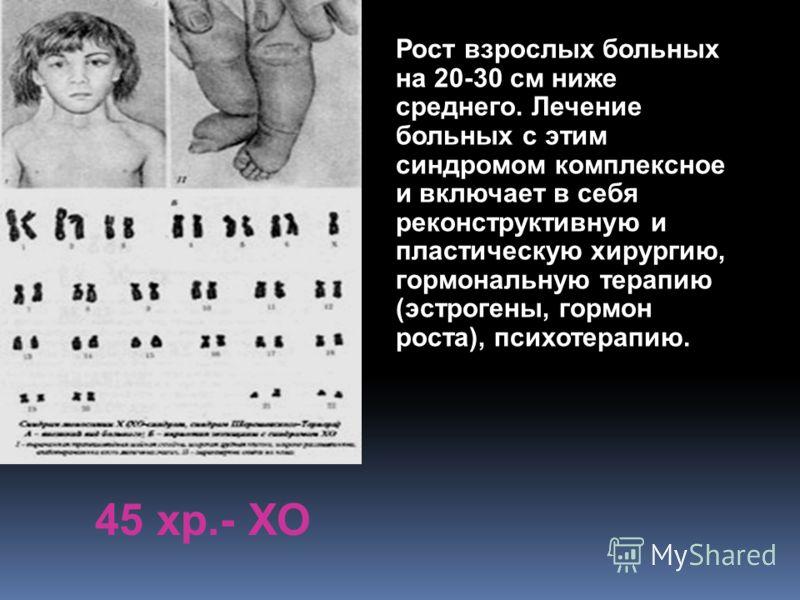 45 хр.- ХО Рост взрослых больных на 20-30 см ниже среднего. Лечение больных с этим синдромом комплексное и включает в себя реконструктивную и пластическую хирургию, гормональную терапию (эстрогены, гормон роста), психотерапию.