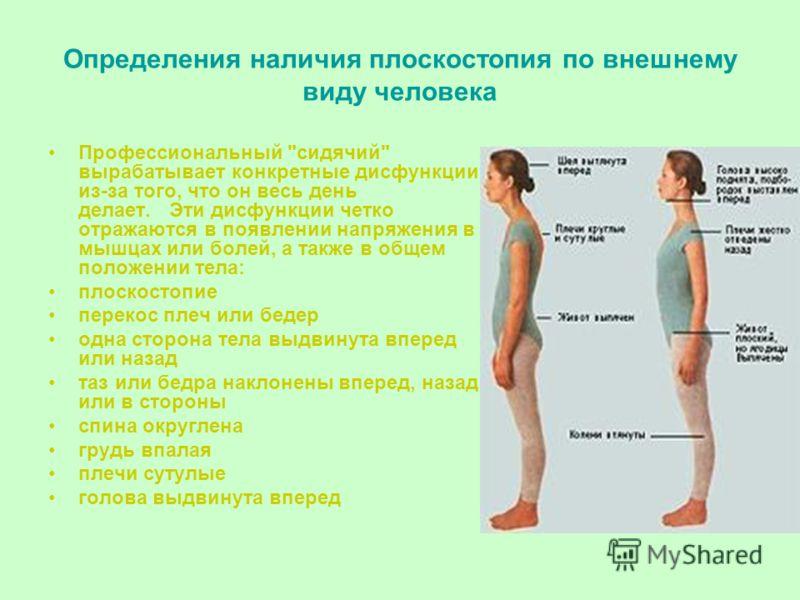 Определения наличия плоскостопия по внешнему виду человека Профессиональный