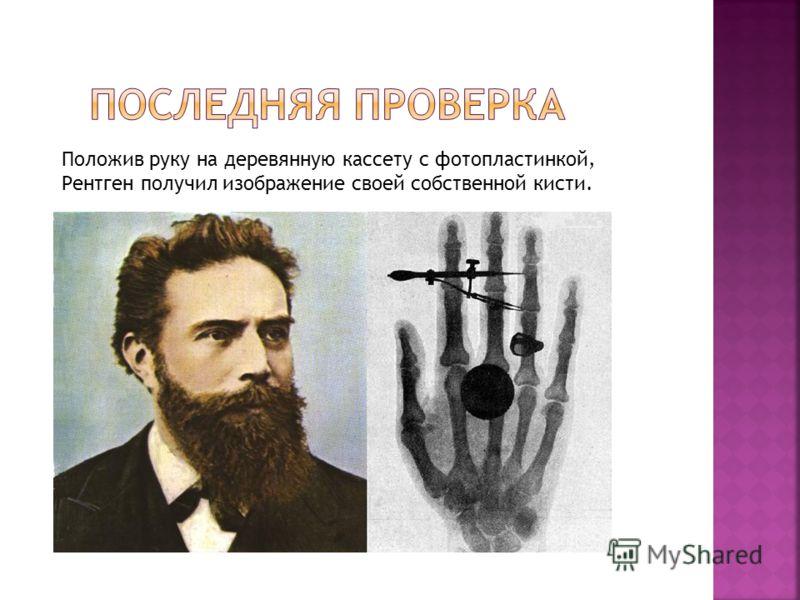 Положив руку на деревянную кассету с фотопластинкой, Рентген получил изображение своей собственной кисти.