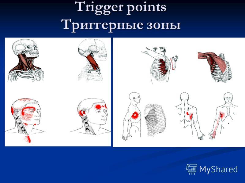 Trigger points Триггерные зоны