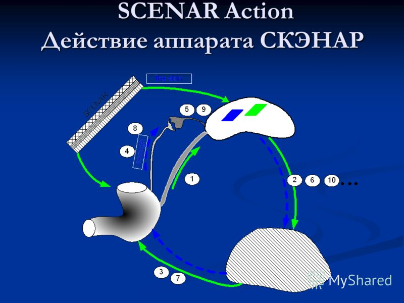 SCENAR Action Действие аппарата СКЭНАР SCENAR Action Действие аппарата СКЭНАР