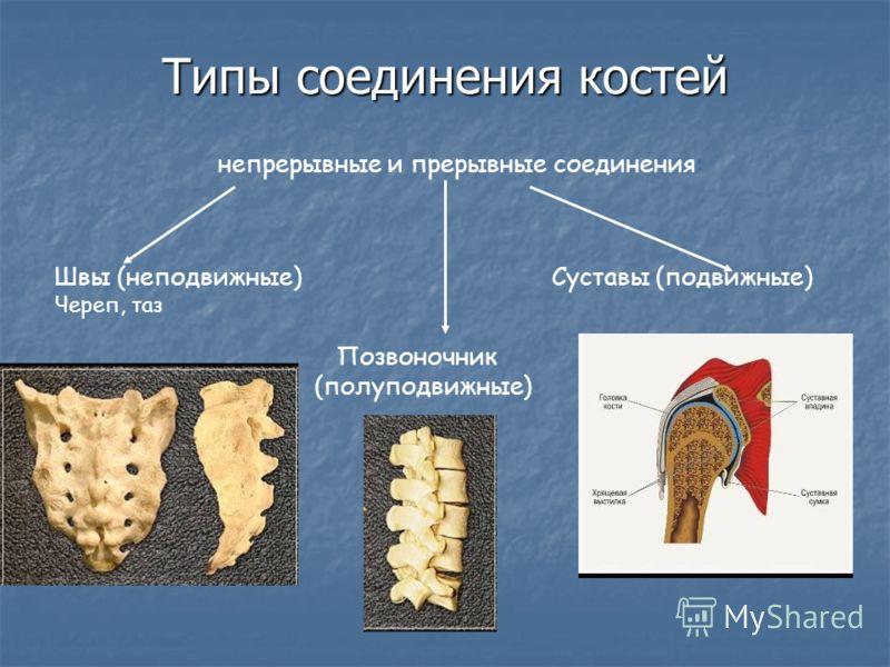 Типы соединения костей непрерывные и прерывные соединения: Швы (неподвижные) Суставы (подвижные) Череп, таз Позвоночник (полуподвижные)