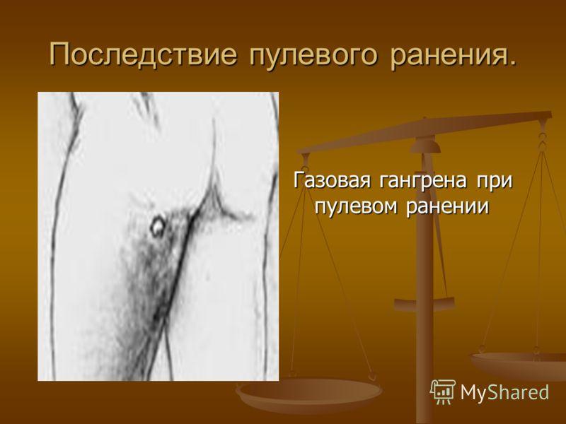 Последствие пулевого ранения. Газовая гангрена при пулевом ранении