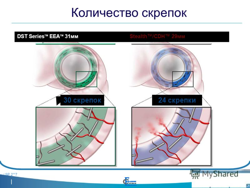 / SP 2°°7 Количество скрепок 24 скрепки30 скрепок Stealth/CDH 29ммDST Series TM EEA TM 31мм