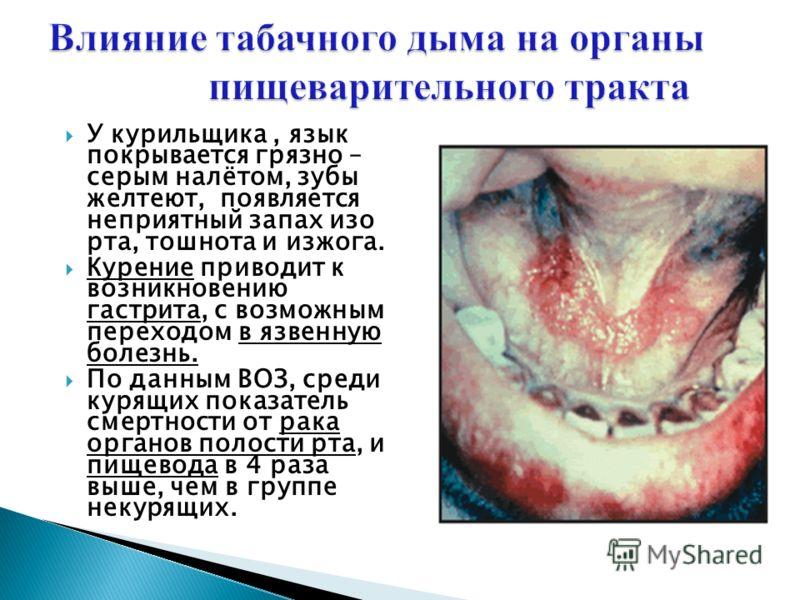 У курильщика, язык покрывается грязно – серым налётом, зубы желтеют, появляется неприятный запах изо рта, тошнота и изжога. Курение приводит к возникновению гастрита, с возможным переходом в язвенную болезнь. По данным ВОЗ, среди курящих показатель с