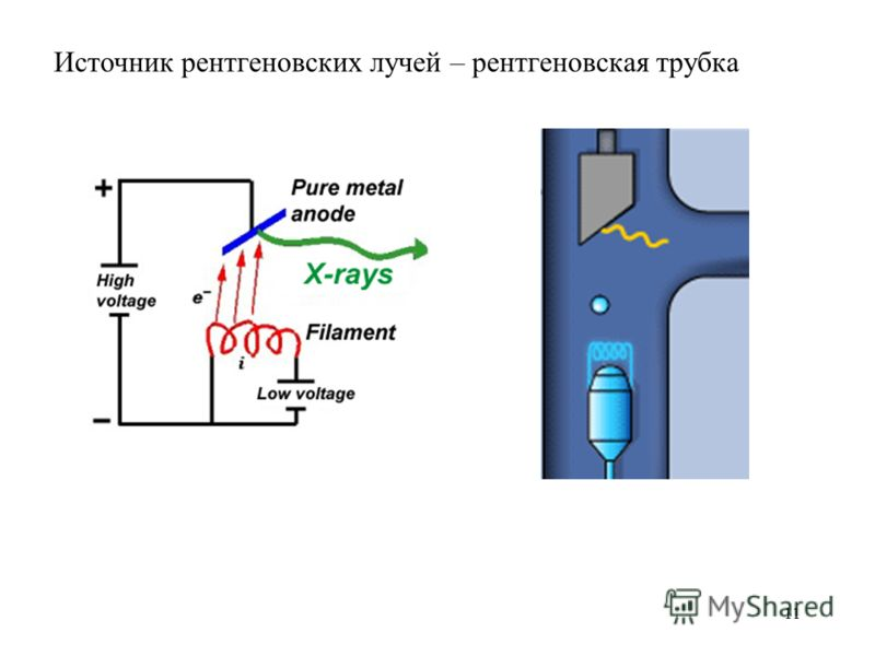 11 Источник рентгеновских лучей – рентгеновская трубка