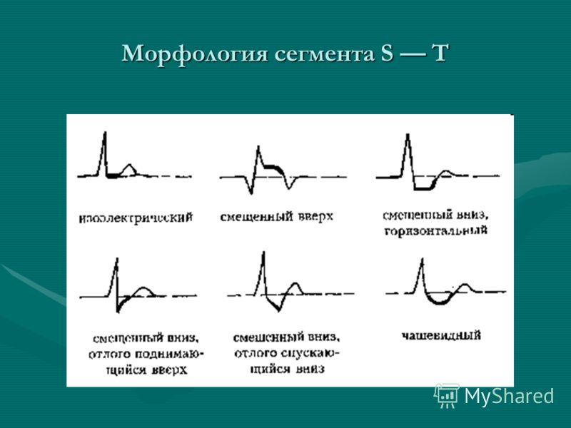 Морфология сегмента S Т