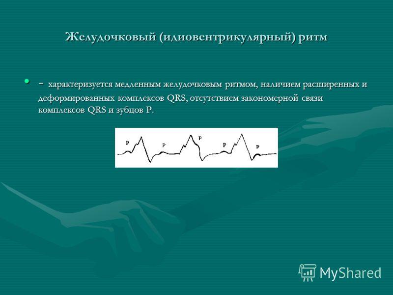 Желудочковый (идиовентрикулярный) ритм - характеризуется медленным желудочковым ритмом, наличием расширенных и деформированных комплексов QRS, отсутствием закономерной связи комплексов QRS и зубцов Р.- характеризуется медленным желудочковым ритмом, н