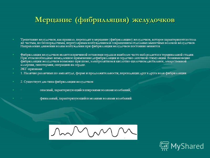 Мерцание (фибрилляция) желудочков Трепетание желудочков, как правило, переходит в мерцание (фибрилляцию) желудочков, которое характеризуется столь же частым, но беспорядочным, нерегулярным возбуждением и сокращением отдельных мышечных волокон желудоч