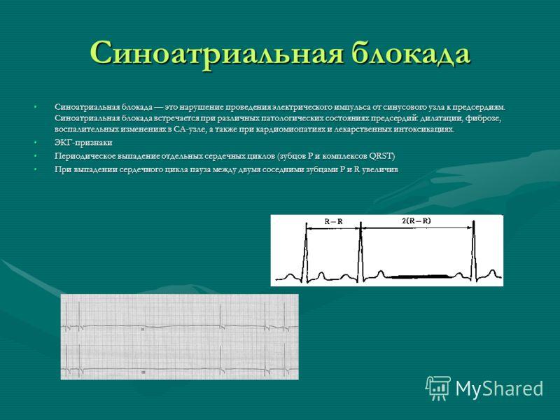 Синоатриальная блокада Синоатриальная блокада это нарушение проведения электрического импульса от синусового узла к предсердиям. Синоатриальная блокада встречается при различных патологических состояниях предсердий: дилатации, фиброзе, воспалительных