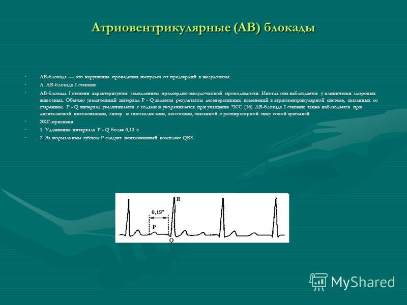 Атриовентрикулярные (АВ) блокады АВ-блокада это нарушение проведения импульса от предсердий к желудочкам.АВ-блокада это нарушение проведения импульса от предсердий к желудочкам. А. АВ-блокада I степениА. АВ-блокада I степени АВ-блокада I степени хара