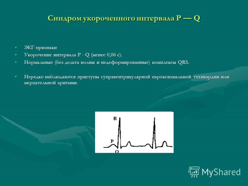 Синдром укороченного интервала Р Q ЭКГ-признакиЭКГ-признаки Укорочение интервала Р - Q (менее 0,06 с).Укорочение интервала Р - Q (менее 0,06 с). Нормальные (без дельта волны и недеформированные) комплексы QRS.Нормальные (без дельта волны и недеформир