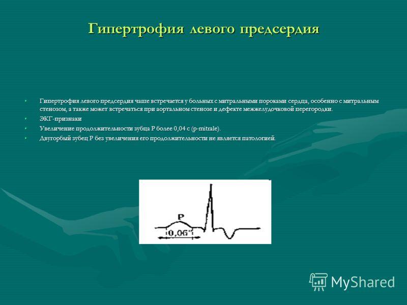 Гипертрофия левого предсердия Гипертрофия левого предсердия чаше встречается у больных с митральными пороками сердца, особенно с митральным стенозом, а также может встречаться при аортальном стенозе и дефекте межжелудочковой перегородки.Гипертрофия л