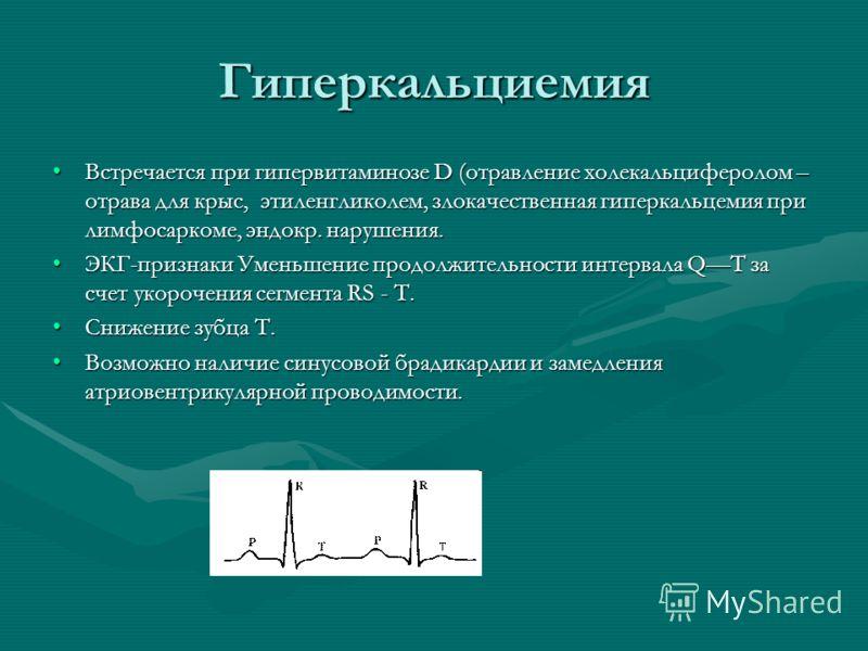 Гиперкальциемия Встречается при гипервитаминозе D (отравление холекальциферолом – отрава для крыс, этиленгликолем, злокачественная гиперкальцемия при лимфосаркоме, эндокр. нарушения.Встречается при гипервитаминозе D (отравление холекальциферолом – от