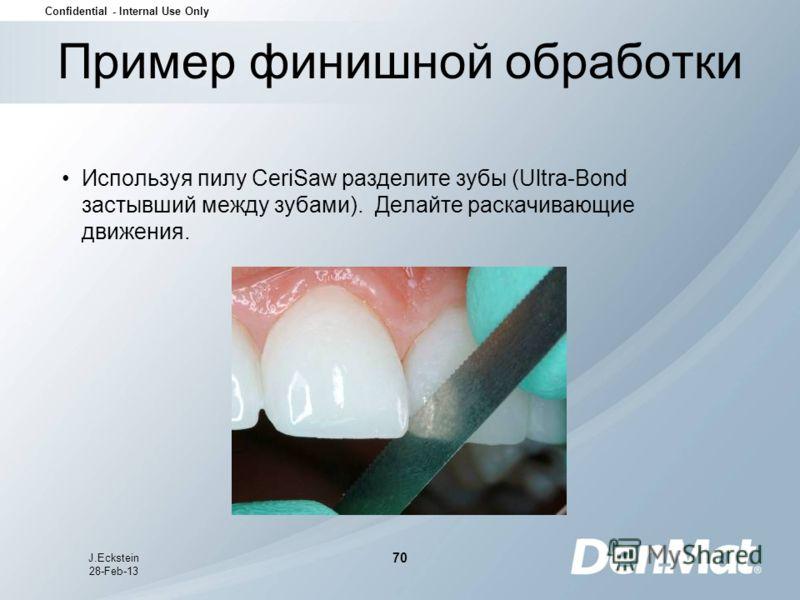 Confidential - Internal Use Only J.Eckstein 28-Feb-13 70 Пример финишной обработки Используя пилу CeriSaw разделите зубы (Ultra-Bond застывший между зубами). Делайте раскачивающие движения.