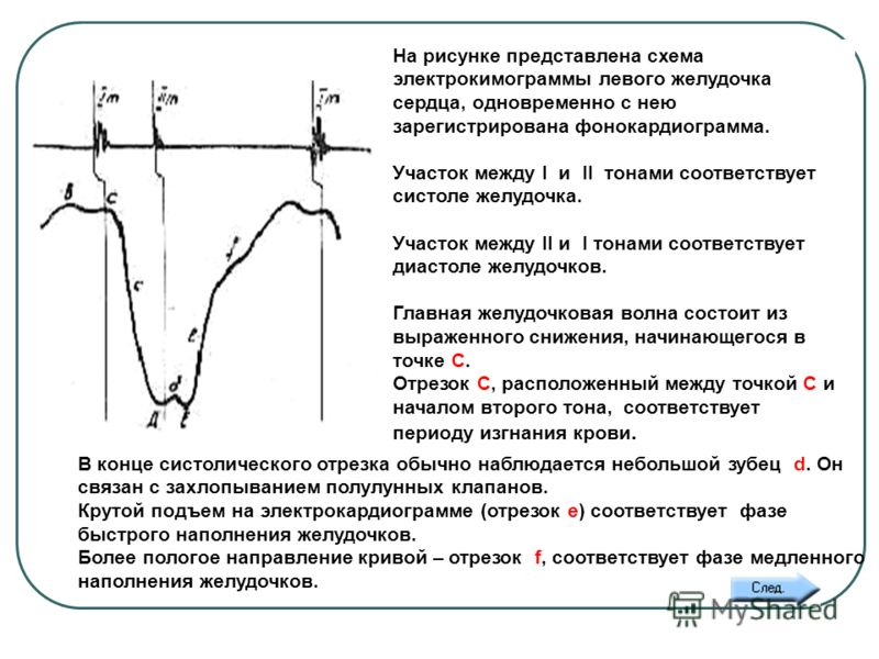 Фонокардиограмма фото