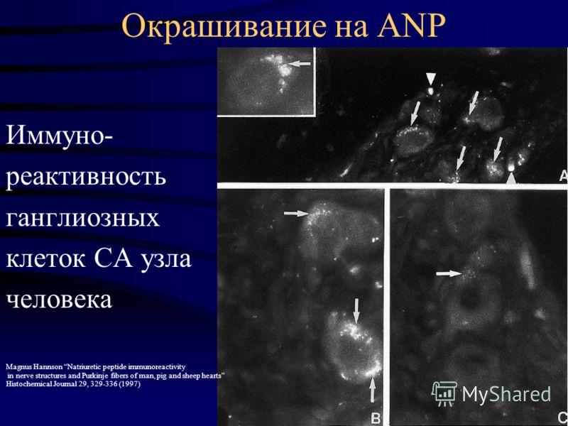Окрашивание на ANP Иммуно- реактивность ганглиозных клеток СА узла человека Magnus Hannson Natriuretic peptide immunoreactivity in nerve structures and Purkinje fibers of man, pig and sheep hearts Histochemical Journal 29, 329-336 (1997)