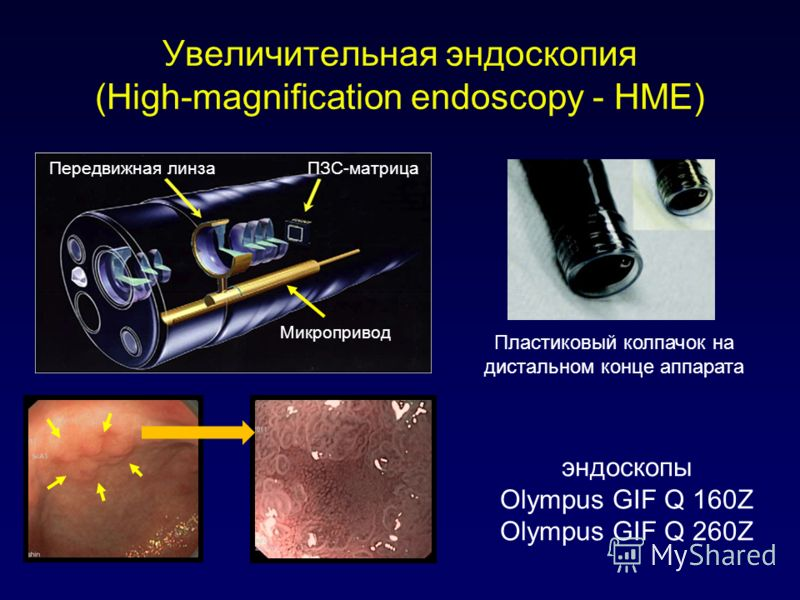 Увеличительная эндоскопия (High-magnification endoscopy - HME) эндоскопы Olympus GIF Q 160Z Olympus GIF Q 260Z ПЗС-матрицаПередвижная линза Микропривод Пластиковый колпачок на дистальном конце аппарата