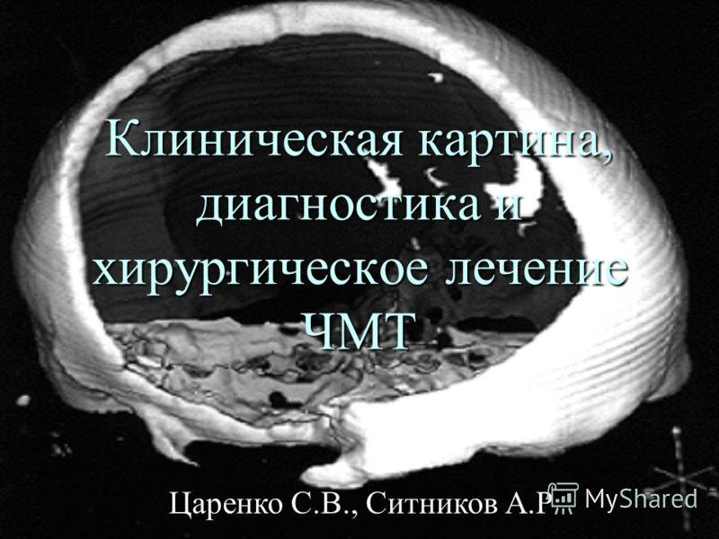 Клиническая картина, диагностика и хирургическое лечение ЧМТ Царенко С.В., Ситников А.Р.