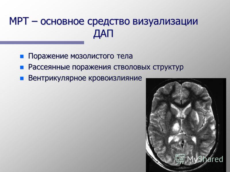 МРТ – основное средство визуализации ДАП n Поражение мозолистого тела n Рассеянные поражения стволовых структур n Вентрикулярное кровоизлияние