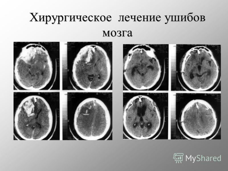 Хирургическое лечение ушибов мозга