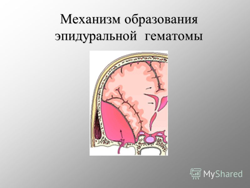 Механизм образования эпидуральной гематомы