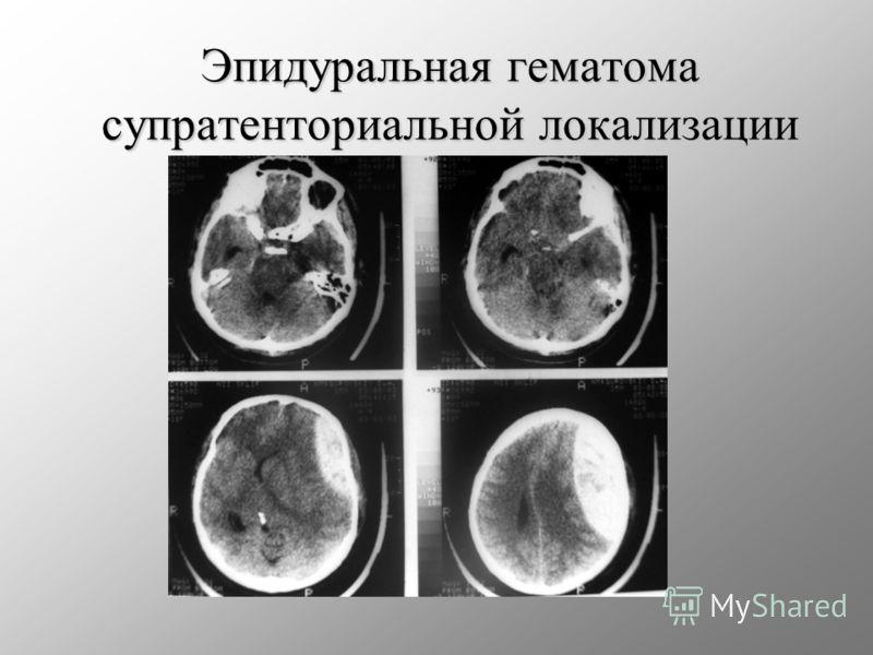 Эпидуральная гематома супратенториальной локализации