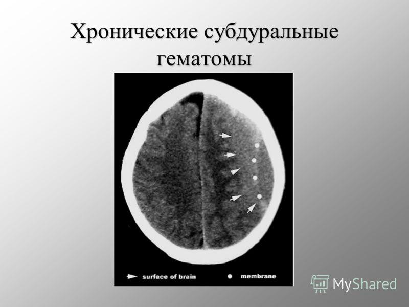 Хронические субдуральные гематомы