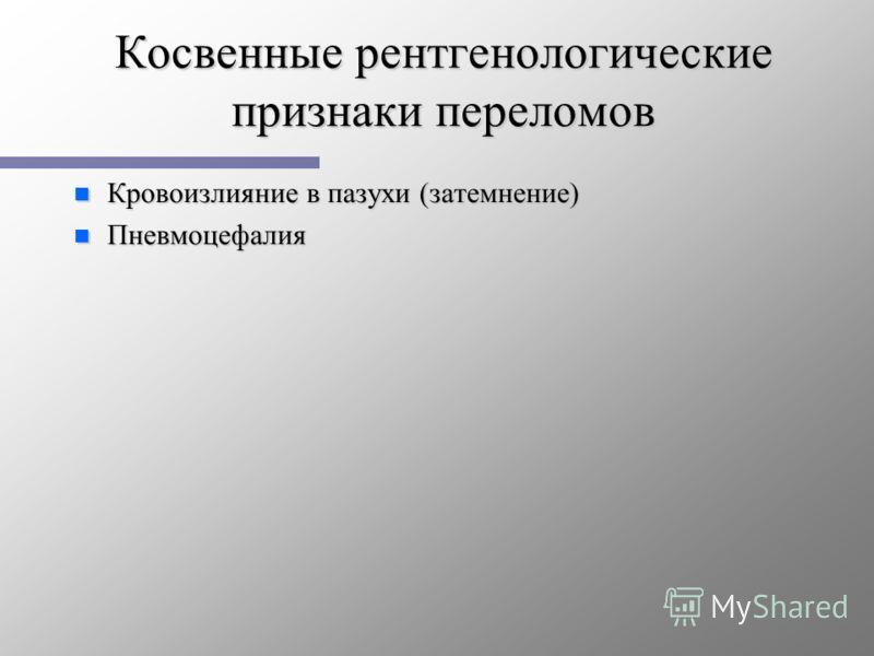 Косвенные рентгенологические признаки переломов n Кровоизлияние в пазухи (затемнение) n Пневмоцефалия