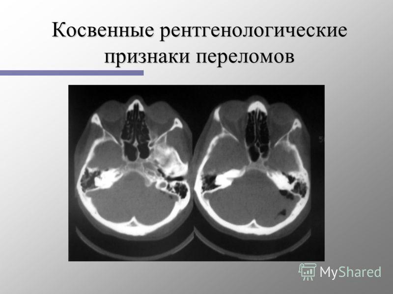 Косвенные рентгенологические признаки переломов