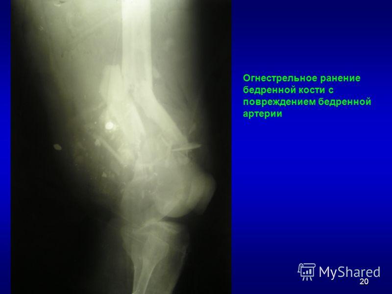 20 Огнестрельное ранение бедренной кости с повреждением бедренной артерии