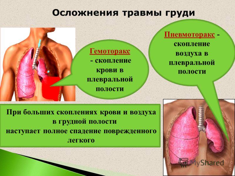 Гемоторакс - скопление крови в плевральной полости Пневмоторакс - скопление воздуха в плевральной полости При больших скоплениях крови и воздуха в грудной полости наступает полное спадение поврежденного легкого Осложнения травмы груди