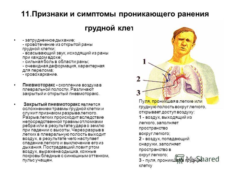 11.Признаки и симптомы проникающего ранения грудной клетки: - затрудненное дыхание; - кровотечение из открытой раны грудной клетки; - всасывающий звук, исходящий из раны при каждом вдохе; - сильная боль в области раны; - очевидная деформация, характе