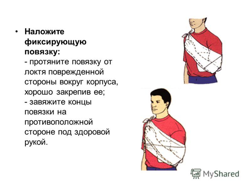 Наложите фиксирующую повязку: - протяните повязку от локтя поврежденной стороны вокруг корпуса, хорошо закрепив ее; - завяжите концы повязки на противоположной стороне под здоровой рукой.