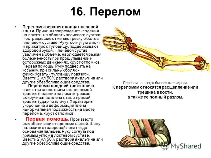 16. Перелом Переломы верхнего конца плечевой кости. Причины повреждения -падения на локоть, на область плечевого сустава. Пострадавшие отмечают резкую
