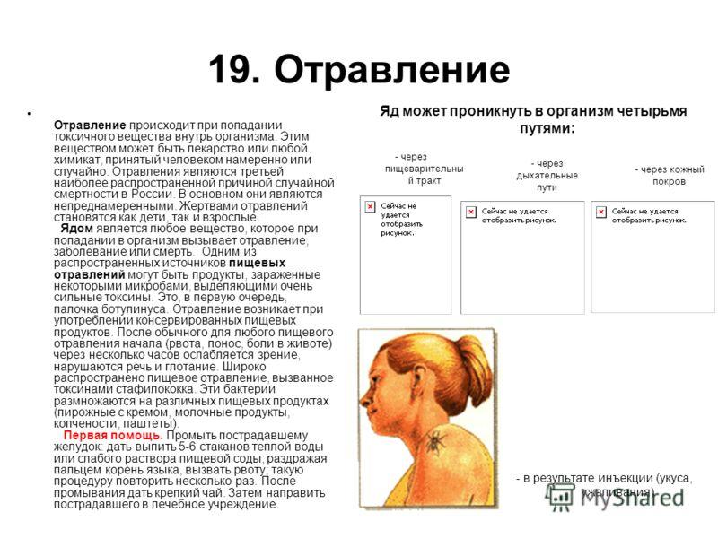 19. Отравление Отравление происходит при попадании токсичного вещества внутрь организма. Этим веществом может быть лекарство или любой химикат, принят