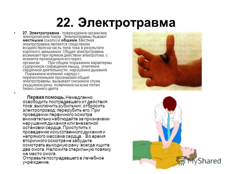 22. Электротравма 27. Электротравма - повреждение организма электрическим током. Электротравмы бывают местными (ожоги) и общими. Местная электротравма