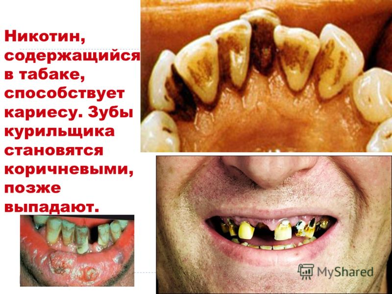 Никотин, содержащийся в табаке, способствует кариесу. Зубы курильщика становятся коричневыми, позже выпадают.