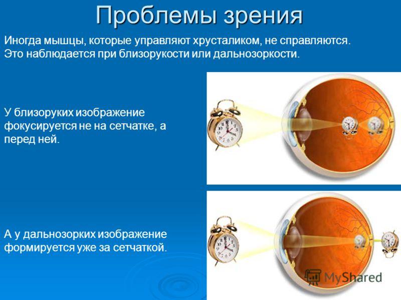 Проблемы зрения Иногда мышцы, которые управляют хрусталиком, не справляются. Это наблюдается при близорукости или дальнозоркости. А у дальнозорких изображение формируется уже за сетчаткой. У близоруких изображение фокусируется не на сетчатке, а перед