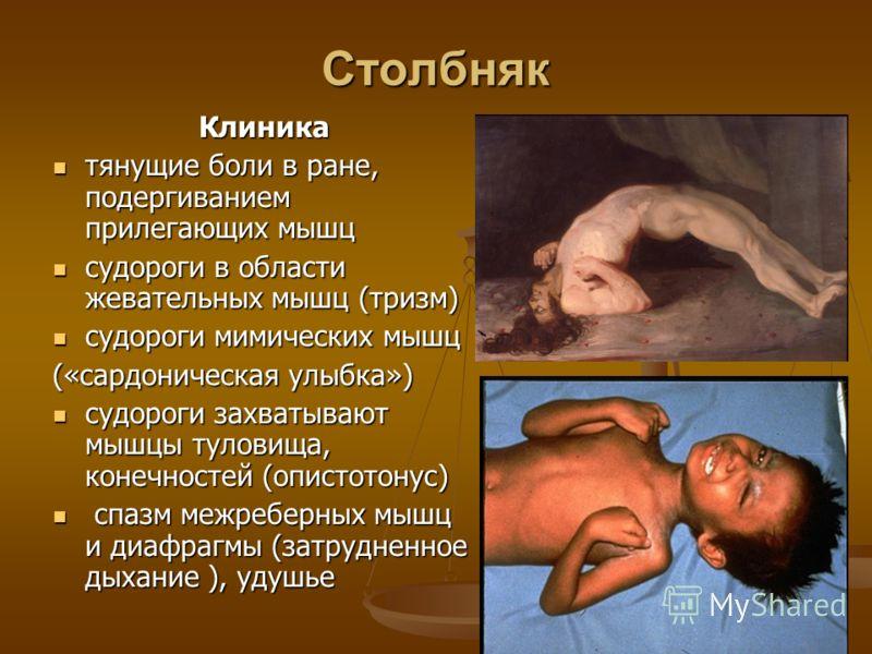 Столбняк Клиника тянущие боли в ране, подергиванием прилегающих мышц тянущие боли в ране, подергиванием прилегающих мышц судороги в области жевательных мышц (тризм) судороги в области жевательных мышц (тризм) судороги мимических мышц судороги мимичес