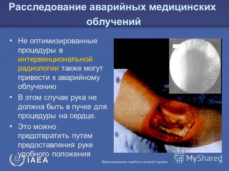 IAEA Предотвращение ошибок в лучевой терапии42 Расследование аварийных медицинских облучений Не оптимизированные процедуры в интервенциональной радиологии также могут привести к аварийному облучению В этом случае рука не должна быть в пучке для проце