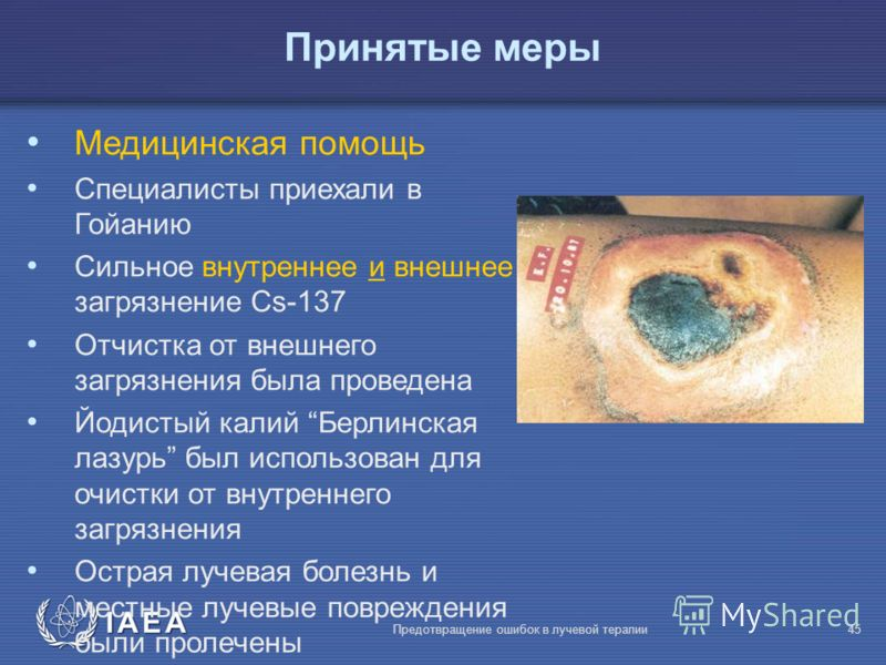 IAEA Предотвращение ошибок в лучевой терапии45 Медицинская помощь Специалисты приехали в Гойанию Сильное внутреннее и внешнее загрязнение Сs-137 Отчистка от внешнего загрязнения была проведена Йодистый калий Берлинская лазурь был использован для очис