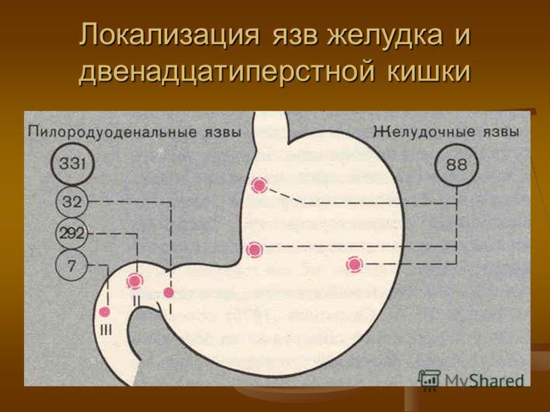 Прободная язва желудка и двенадцатиперстной кишки