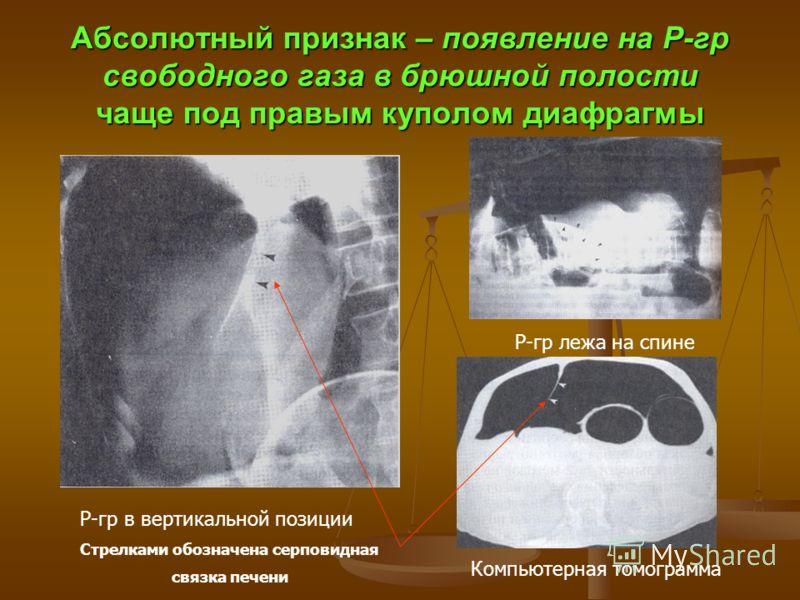Абсолютный признак – появление на Р-гр свободного газа в брюшной полости чаще под правым куполом диафрагмы Р-гр в вертикальной позиции Стрелками обозначена серповидная связка печени Р-гр лежа на спине Компьютерная томограмма