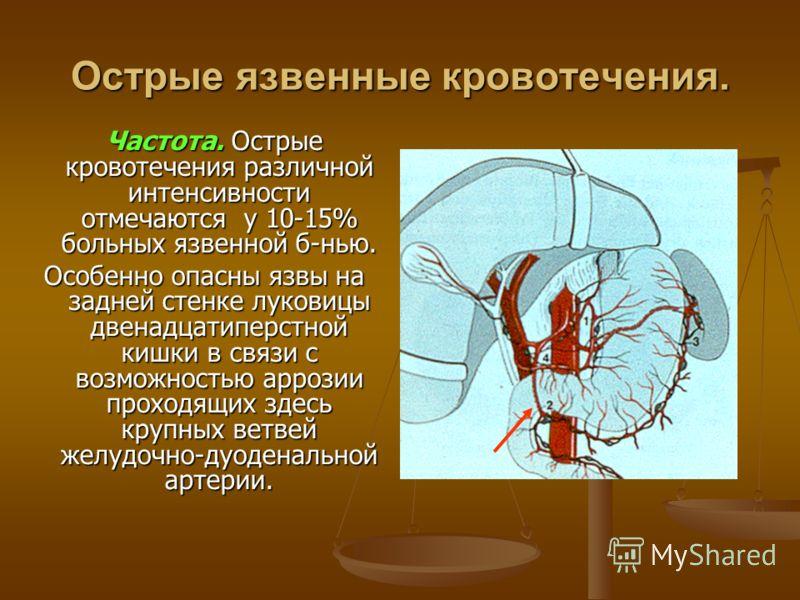 Острые язвенные кровотечения. Частота. Острые кровотечения различной интенсивности отмечаются у 10-15% больных язвенной б-нью. Частота. Острые кровотечения различной интенсивности отмечаются у 10-15% больных язвенной б-нью. Особенно опасны язвы на за
